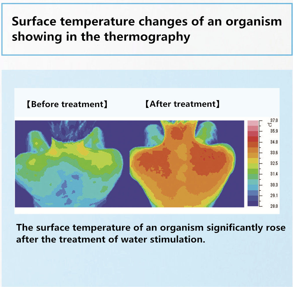 Surface temperature changes of an organism showing in the thermography.jpg